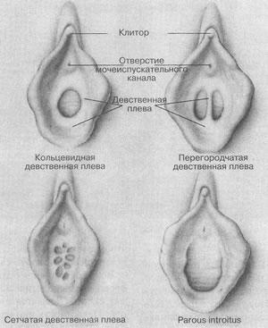 Вход во влагалище прикрыт тонким слоем ткани - девственной плевой