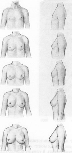 ярина увеличение груди